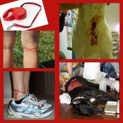 Retractable leash burn